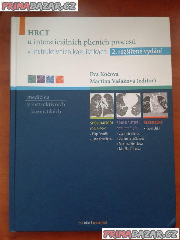 HRCT u intersticiálních plicních procesů, medicína